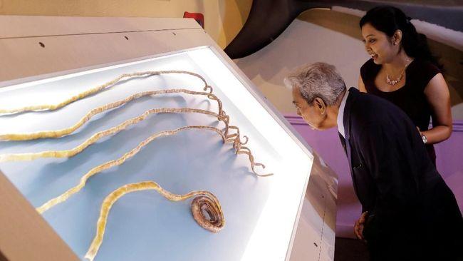 Kuku Terpanjang di Dunia Akhirnya Dipotong Setelah 66 Tahun