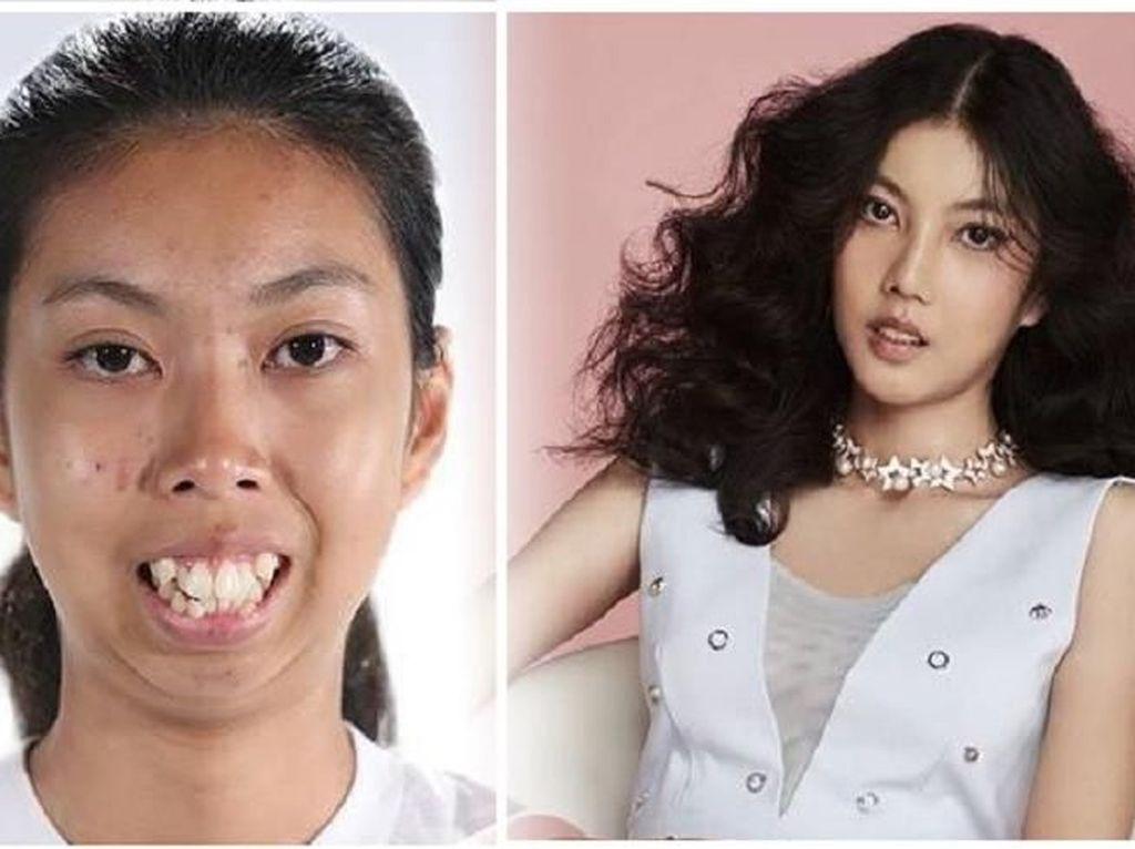 Takjub! Transformasi Wanita Usai Oplas, Dulu Merasa Seperti Monster