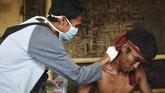 Pendaki Gunung Rinjani yang sempat terjebak longsor akibat gempa bumi menerima perawatan medis setibanya di Pos Bawaknao, Sembalun, Lombok Timur, NTB, Senin (30/7). ANTARA FOTO/Akbar Nugroho Gumay/foc/18.