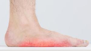 'Menebak' Penyakit dari Warna Kuku Jari Kaki