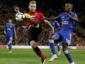 Bek Man United Luke Shaw Hampir Kehilangan Kaki Kanan