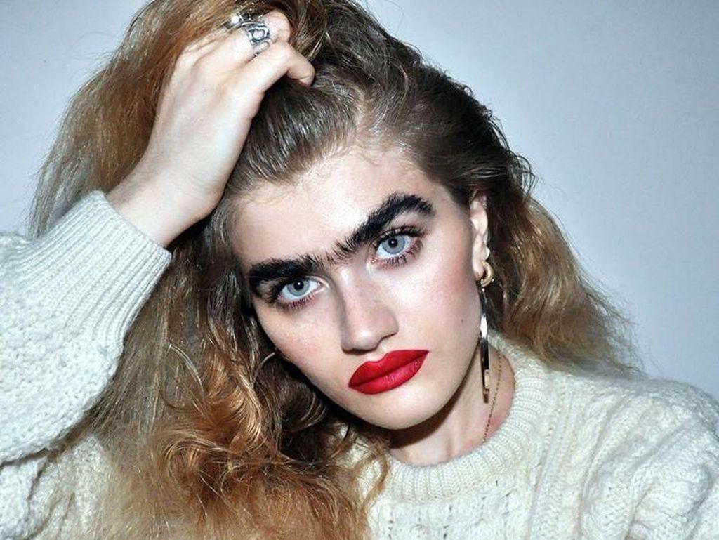 10 Model Tak Sempurna yang Mendobrak Standar Kecantikan Dunia Fashion