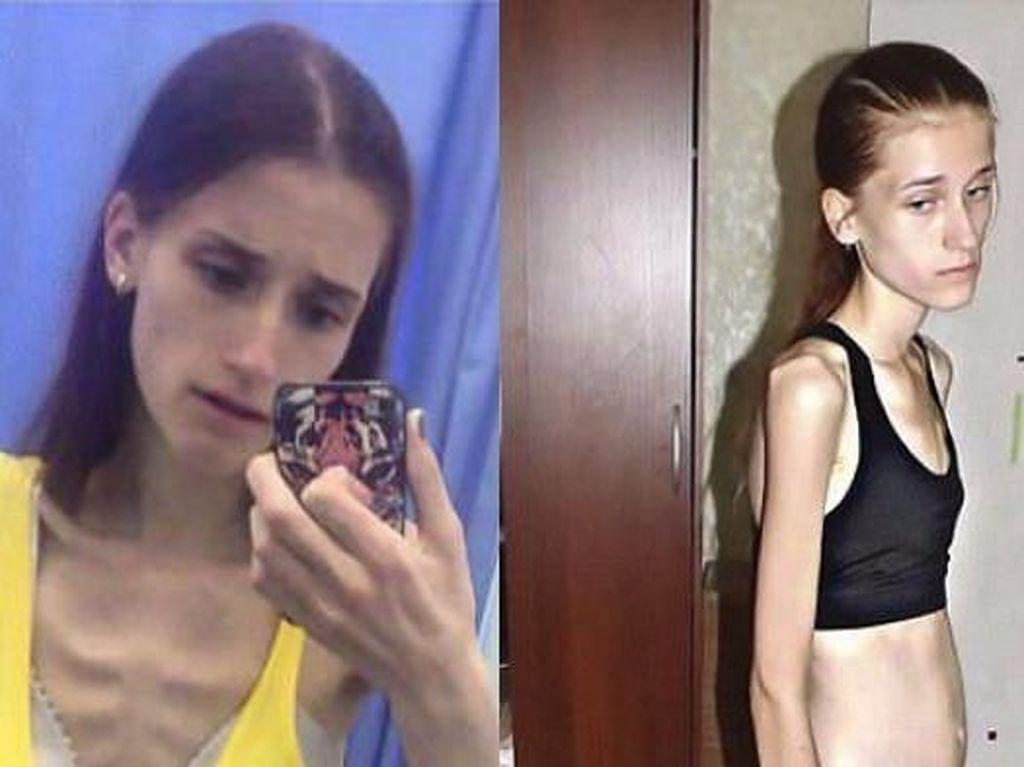Dulu Kurusnya Kebangetan, Transformasi Penampilan Wanita Ini Bikin Melongo