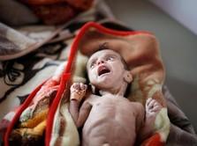 Yaman Dilanda Perang, Anak-anak Menderita Gizi Buruk