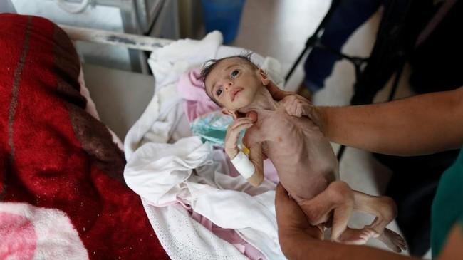 Ratusan anak di negara miskin itu kini tengah diserang penyakit gizi buruk yang parah. (REUTERS/Khaled Abdullah)
