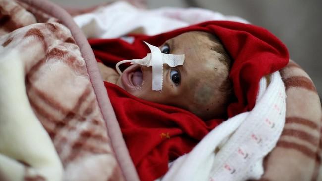 Di rumah sakit yang sama, seorang balita malnutrisi dibungkus dengan selimut dan selang dihidung. (REUTERS/Khaled Abdullah)