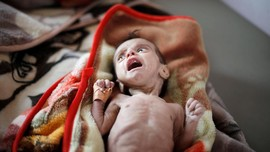 FOTO: Kisah Pilu Anak-anak Yaman Malnutrisi Korban Perang