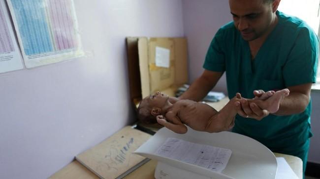 Seorang suster menimbang balita malnutrisi di rumah sakit Al-Sabeen, Yaman. (REUTERS/Khaled Abdullah)