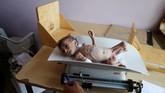 UNICEF mengaku kini tengah mengobati sekitar 224 ribu pada balita di bawah 5 tahun yang terkena malnutrisi dengan pengobatan terapeutik sejak awal 2018. (REUTERS/Khaled Abdullah)