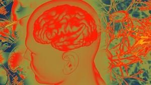 Melawan Belenggu Demensia