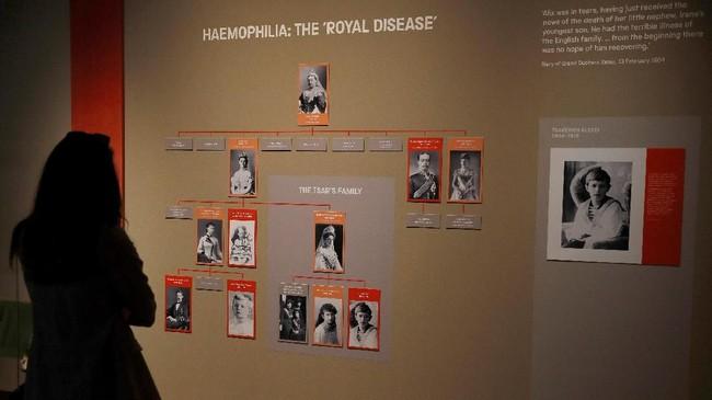 Sebuah silsilah keluarga dalam pameran The Last Tsar: Blood and Revolution di Science Museum, London, 20 September lalu menunjukkan riwayat penyakit hemofilia B yang menyerang putra Tsar Nikolai II, Alexei. (REUTERS/Peter Nicholls)