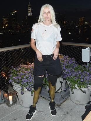 Foto: 10 Pesona Lauren Wasser, Model Difabel Berkaki Emas