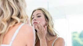 Cara Mengatasi Kulit Wajah yang Mengelupas