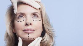 Alasan Umum Orang Tergoda 'Buaian' Operasi Plastik