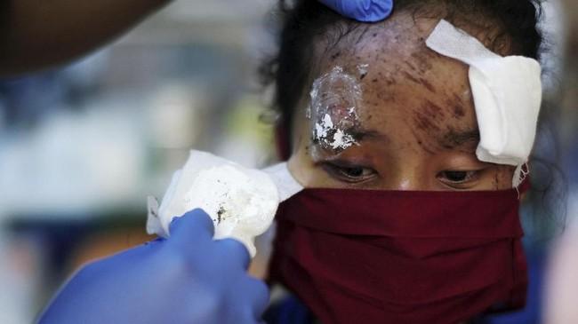 Seorang pasien korban gempa dan tsunamiSulteng sedang dibuka perbannya untuk diganti yang baru oleh seorang tenaga medis di sebuah rumah sakit Kota Palu, 4Oktober 2018. (REUTERS/Athit Perawongmetha)