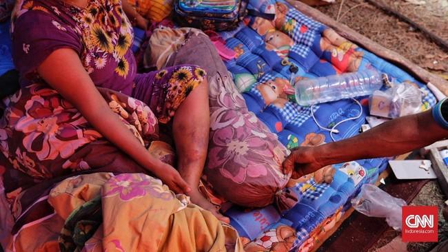 Selain soal minim bantuan logistik, korban yang luka akibat gempa pekan lalu juga belum mendapat penangan medis yang layak.(CNN Indonesia/Adhi Wicaksono)