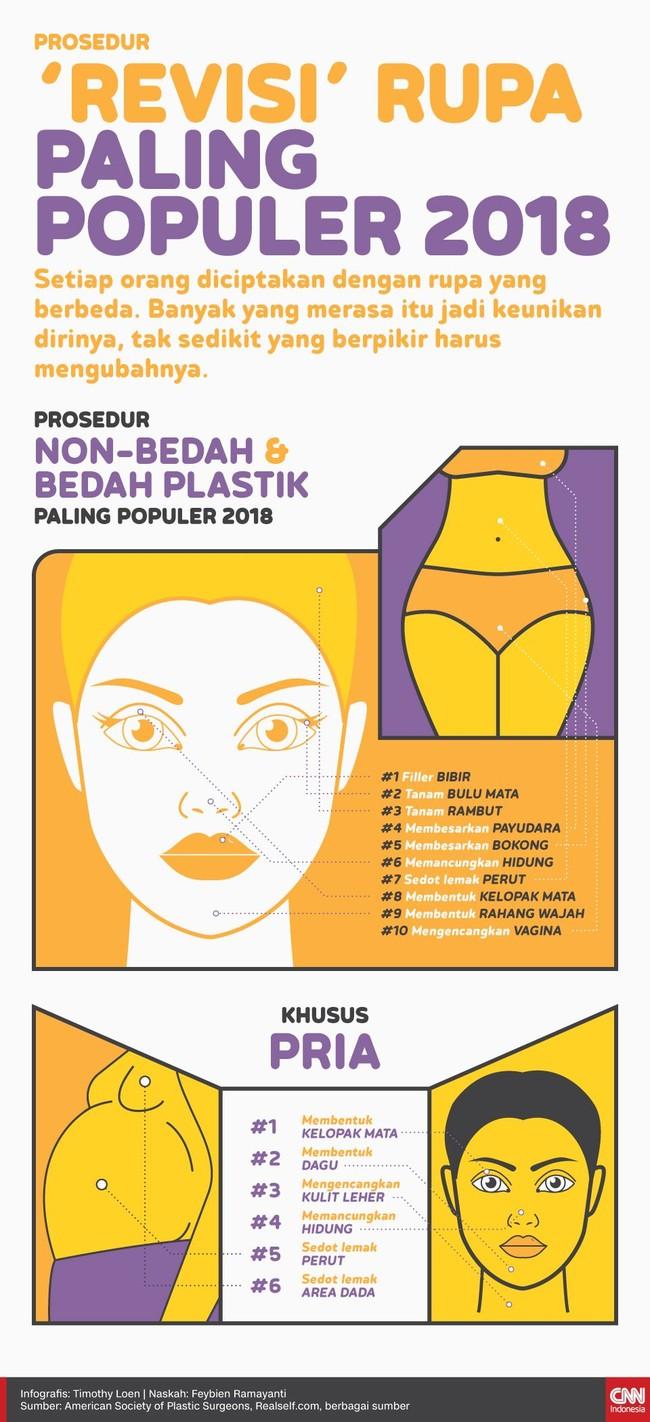 INFOGRAFIS: Prosedur 'Revisi' Rupa Paling Populer 2018