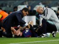 Patah Tulang Tangan, Lionel Messi Absen di El Clasico