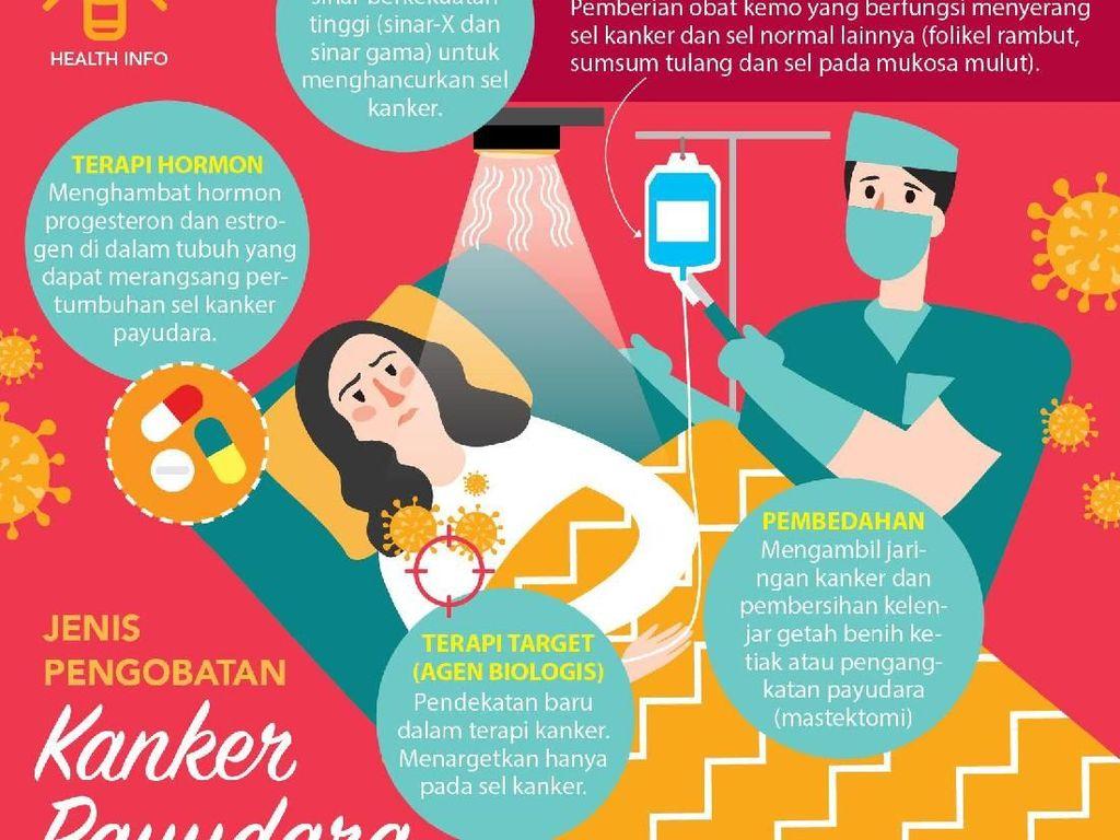 Jenis-Jenis Pengobatan Kanker Payudara yang Kamu Perlu Tahu