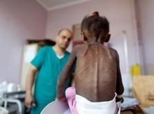 2020 Jaman Edan, PBB Sebut 265 Juta Warga Terancam Kelaparan
