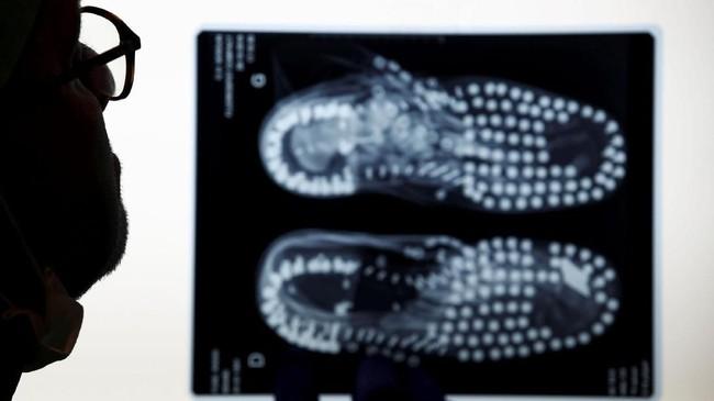Asisten forensik Prancis Manu Robas melihat gambar-gambar X-ray yang menunjukkan sepatu bot yang dikumpulkan di samping sisa-sisa tentara yang tidak diketahui. (REUTERS/Christian Hartmann)