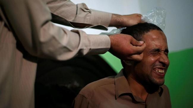 Kini, terapi sengat lebah Abulhassan kedapatan sekitar lima pasien setiap bulannya. Dalam satu sesi khusus, dia bakal menggunakan enam lebah yang 'ditugaskan' untuk menyengat pasien di berbagai bagian tubuh. (REUTERS/Amr Abdallah Dalsh)