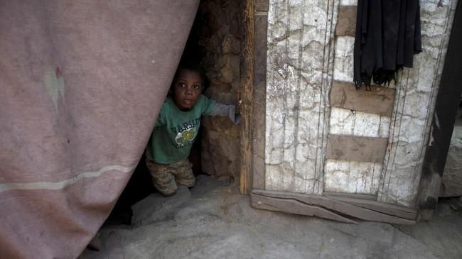 Berdasarkan data PBB, nyaris satu setengah juta anak di Yaman mengalami malnutrisi akut, banyak di antaranya diprediksi akan tewas jika perang terus berlanjut. (Reuters/Mohamed al-Sayaghi)