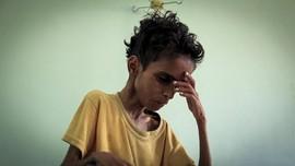 FOTO: Bayang Wabah Kelaparan Akibat Perang Yaman