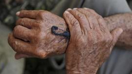 FOTO: Racun Sengatan Kalajengking Kuba yang Menyehatkan