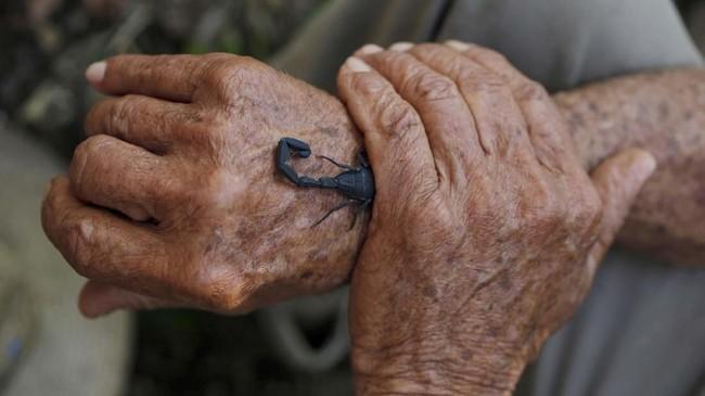 Kalajengking di Kuba dipercaya berkhasiat untuk kesehatan. Racun hewan endemik Pulau Karibia ini dipercaya memiliki sifat anti-inflamasi dan mampu meredakan nyeri. (REUTERS/Stringer)
