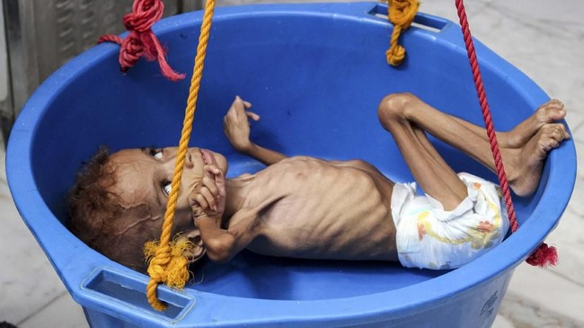 Bassem Mohamed Hassan, bayi Yaman berusia dua tahun yang mengalami malnutrisi, sedang ditimbang di rumah sakit di Abs, Hajjah, pada 19 September 2018. (Essa Ahmed / AFP)