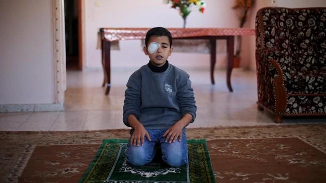 Sayangnya Najjar kini kehilangan sebelah penglihatannya selepas insiden itu. (REUTERS/Ibraheem Abu Mustafa)