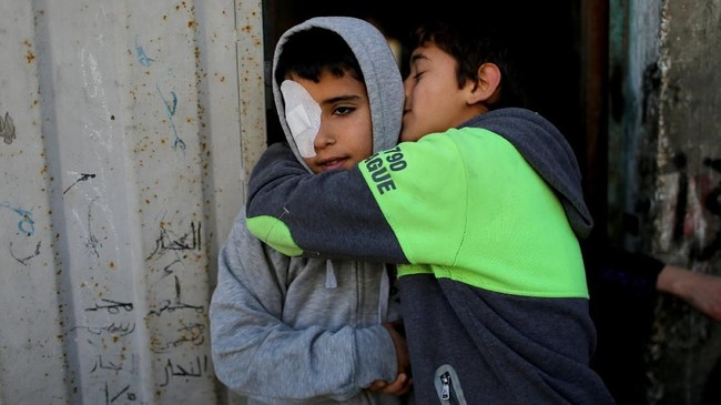 Najjar mengaku dia ditembaki dengan gas air mata, dan sesuatu mengenai matanya. (REUTERS/Ibraheem Abu Mustafa)