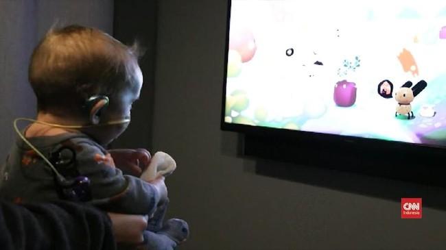 VIDEO: Riset Sebut Gangguan Pendengaran Terkait Dunia Visual