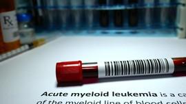 Mengenal Kanker Darah: Leukemia