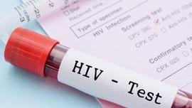 Kini Tes HIV/AIDS Bisa Dicek Sendiri dengan Mudah di Rumah