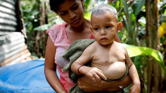 Hingga kini, Guaido masih memutar otak untuk membawa masuk bantuan-bantuan asing yang menumpuk di perbatasan negaranya. (Reuters/Carlos Garcia Rawlins)