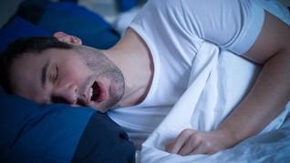 Sederet Bahaya dari Tidur dengan Mulut Terbuka