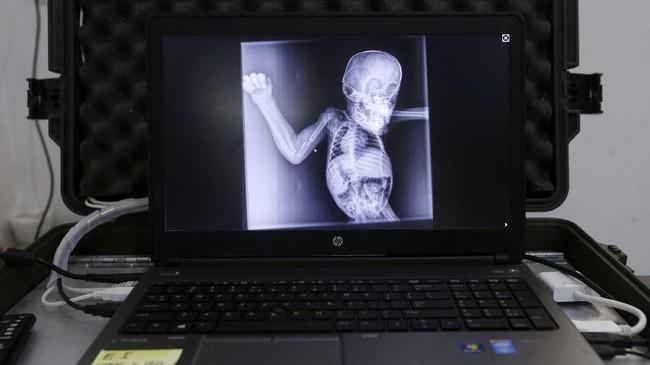 Foto X-Ray Brenda yang menunjukkan luka tembakannya. (AP Photo/Binsar Bakkara)