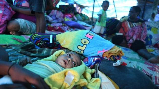 Para pengungsi terutama anak-anak dalam kondisi memprihatinkan. Mereka tinggal di tenda-tenda darurat di Bukit Harapan, Sentani, Jaya Pura, Papua. (ANTARA FOTO/Zabur Karuru/aww)