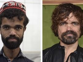 FOTO: Hari-hari Rozi Khan, 'Tyrion Lannister' dari Pakistan