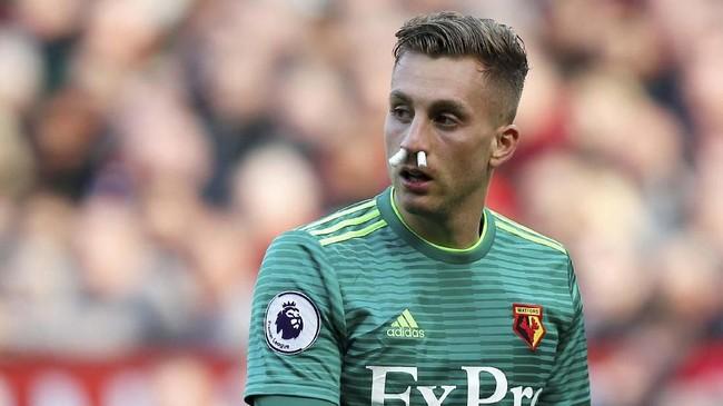 Hidung Gerard Deulofeu harus disumbat dengan kapas untuk mencegah darah keluar. (REUTERS/Andrew Yates)