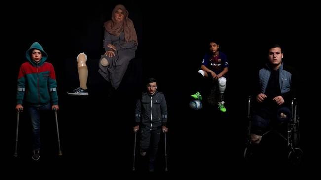 Lebih dari seratus orang kehilangan anggota tubuhnya akibat ricuh demonstrasi di Jalur Gaza. Kini, mereka dapat kembali beraktivitas lancar berkat kaki palsu. (Reuters/Mohammed Salem)