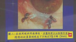 VIDEO: Empat Ekor Lebah Hidup di dalam Mata Wanita Taiwan