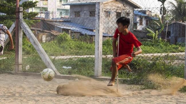 Setiap bermain sepak bola, Kaung Khant Lin mengaku melupakan kondisi kakinya dan bermain seperti orang normal.(SAI AUNG MAIN / AFP)