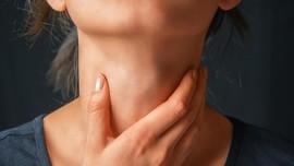 Penyebab Munculnya Infeksi Bintik Putih di Tenggorokan