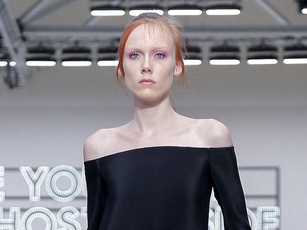 Foto: Ini Kiki Willems, Model yang Jadi Kontroversi karena Kurus Banget