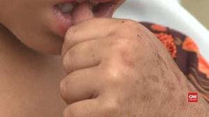 VIDEO: Dokter di Pakistan Dianggap Tularkan HIV Ke Warga