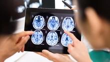Jenis-jenis Kanker Otak Seperti yang Diderita Agung Hercules