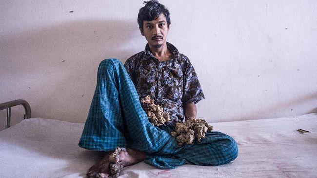 Sakit Tak Menahan, 'Manusia Pohon' Ingin Tangannya Diamputasi